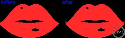 口角のライン画像2